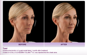 Before-and-After-Oxnard-Ventura-JUVÉDERM-VOLUMA™-XC