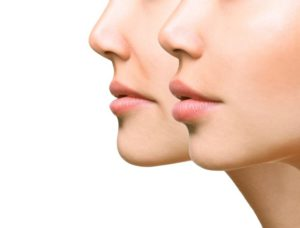 The Science Behind Facial Fillers