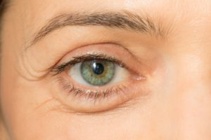 What Causes Bags Under the Eyes, and What Can I Do About Them